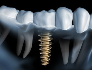 Dental implants require cleaning to prevent bacteria from causing bone loss.