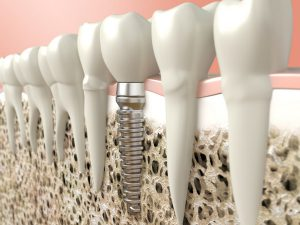In Mountain View, CA, our patients know that dental implants are a great alternative to dentures.