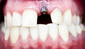 Dental implants provide permanent oral function.