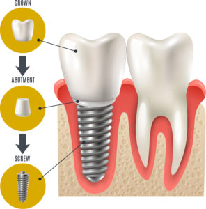 Dental Implant Infographic MountainView